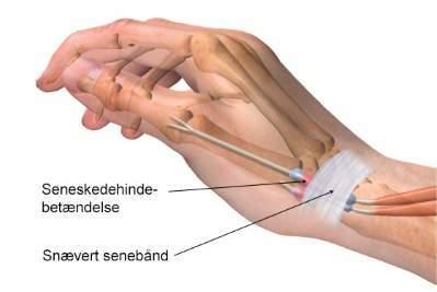 Seneskedehindebetændelse